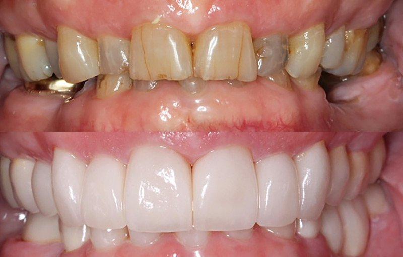 dental restoration before and after