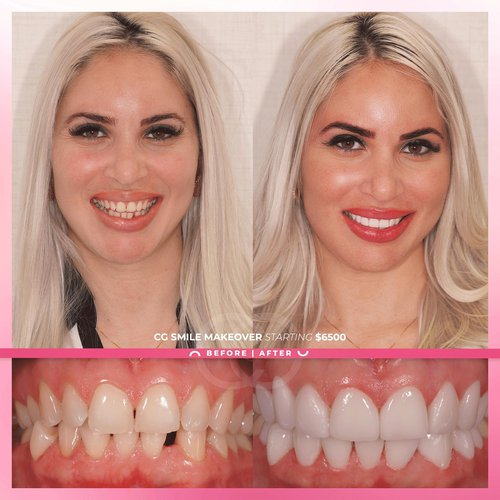 Stunning results of our CG Smile Makeover🤍Remem...