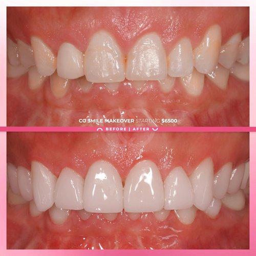 Dazzling CG Smile Makeover with Porcelain Venee...
