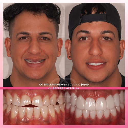 Check out this amazing transformation!!! We inv...