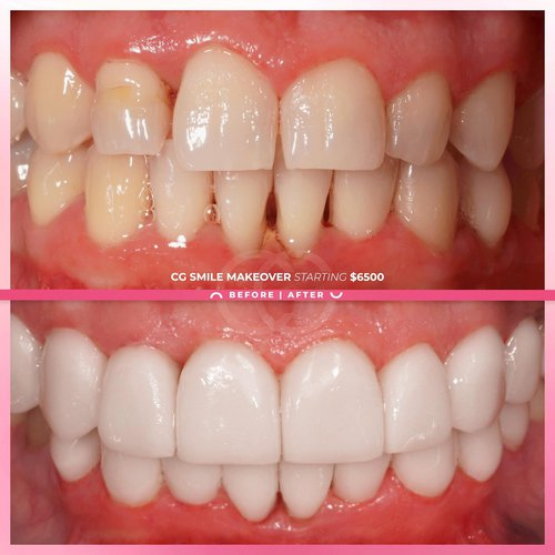 Amazing CG Smile Makeover! Come get the smile o...